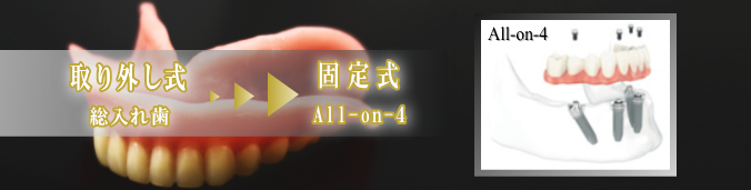 all-on-4 インプラント 名古屋